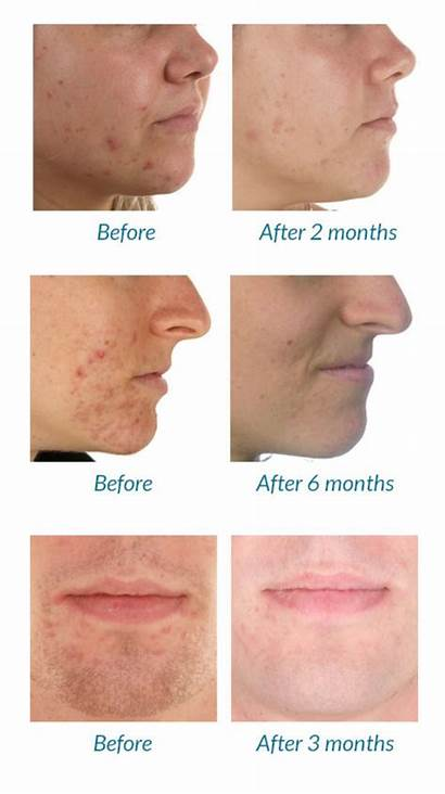 Therapy Acne Before Mask Scar Wallsofbeauty Skin