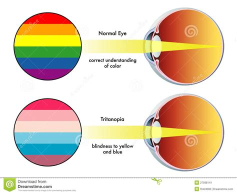 color blindness symptoms tritanopia stock image image of visual defects optic