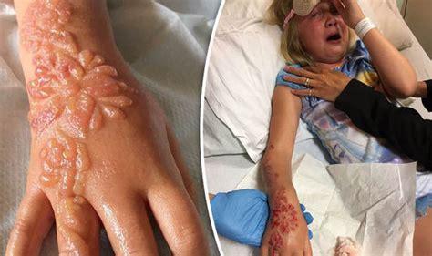 Henna Tattoo Blisters henna tattoo leaves girl   horrific chemical burns 590 x 350 · jpeg