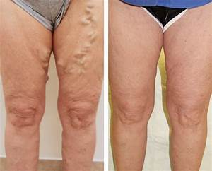 Dallas Vein Removal Doctor - Varicose Veins, Spider Veins ...