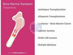 Bone Marrow Transplant (BMT) - IndianMedTrip