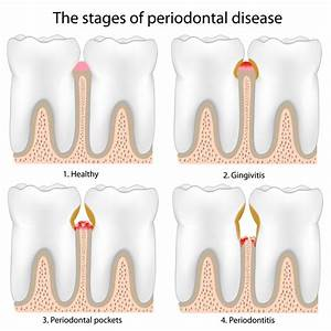 Columbia Periodontal Treatment | Glen Burnie Periodontics ...
