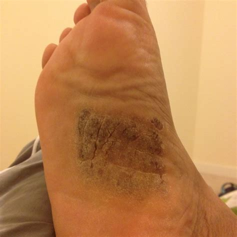itchy dry flaky soles  psoriasis support forum topic