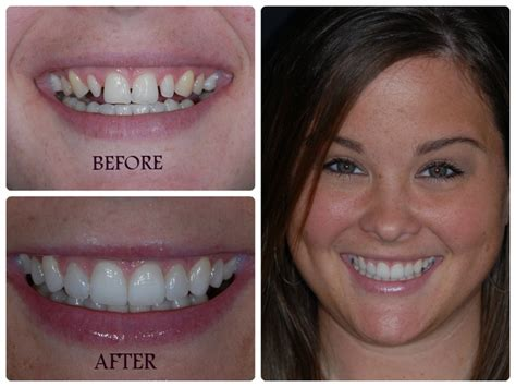 smile design dentistry 39 best images about smile designs on a smile