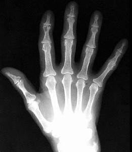 ... size version of Subperiosteal bone resorption - hyperparathyroidism Hyperparathyroidism