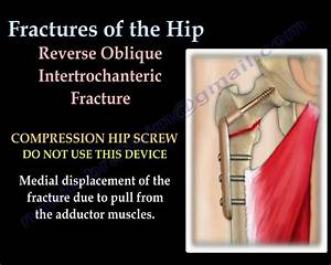Fractures Of The Hip And Its Fixation