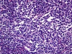 Medulloblastoma: Pathology | Neupsy Key