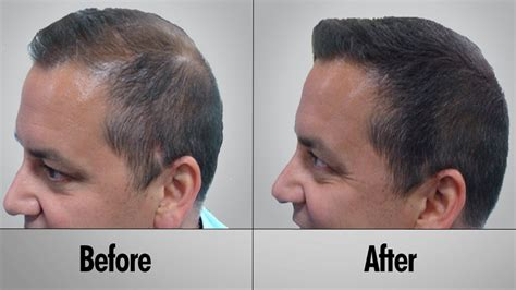 Hair Regrowth for Men Naturally   Health Blog