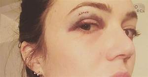 Mandy Moore Gets Black Eye from Shower Door Handle: Photo