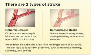 What is a Stroke - Risk Factors & Information - Stroke Awareness Stroke