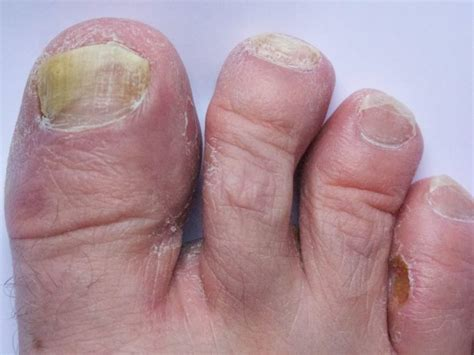 Home Remedies For Athlete's Foot  Organic Facts. Patent Lawyers In Michigan Att Uverse Special. Health Care Administration Uma Student Portal. Washtenaw Veterinary Hospital. How To Sign Out Of Twitter Wedding Ring Value. Can I Use An Ipad As A Phone. Top Financial Software Proactive Skin Product. Send Faxes Online For Free Smart Service Desk. Outside A C Unit Not Working