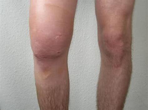 Artroscopie van de knie - Rijnland Orthopaedie