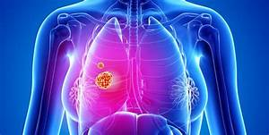 9, Signs, And, Symptoms, Of, Lung, Cancer, According, To, Doctors