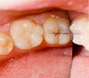 Cavities Symptoms