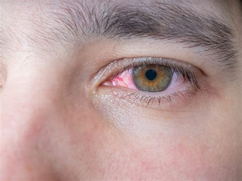 Eyes Suddenly Got Blurry 11 Causes Of Blurry Vision Health