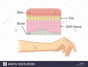 Anatomy Of Human Skin Layer And Arm Stock Vector Art  U0026 Illustration  Vector Image  160366986