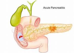 symptomen ontsteking alvleesklier