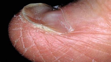 Koilonychia: Causes, symptoms, and diagnosis