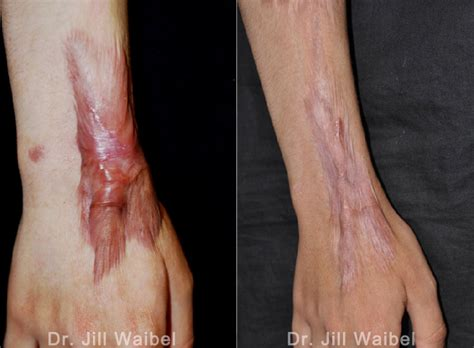 Burn Scar Treatment Before And After Pictures In Miami, Fl