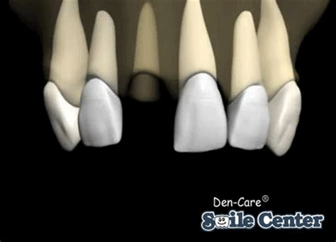 affordable dental implants lake county il den care smile