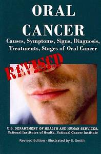 New Oral Cancer Causes Symptoms Signs Diagnosis Treatments ...
