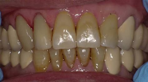 selkirk ny dentist    composite fillings
