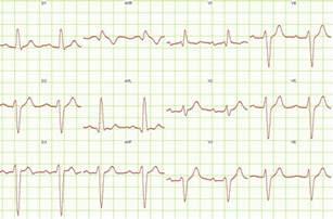 Right Bundle Branch Block EKG