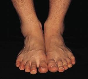 Как вылечить грибок ногтей на ногах перекисью водорода