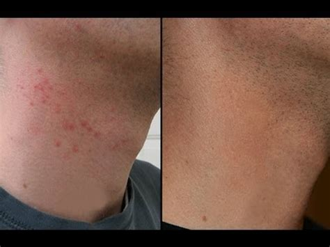 HOW TO CURE RAZOR BURN BUMPS ON NECK & LEGS! - YouTube