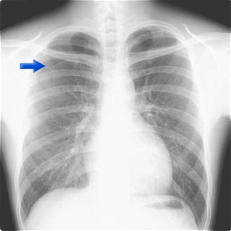 肺 気胸 再発