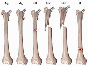 Fixation of Periprosthetic Fractures About/Below Total Hip ...