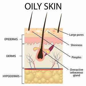 Illustration Of The Layers Of Oily Skin Stock Vector
