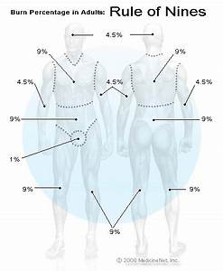 Burn Percentage Chart Rule Of 9 Burn Percentage In Adults Rule Of Nines Chart