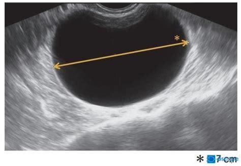 卵巣 嚢腫 大きく なる スピード