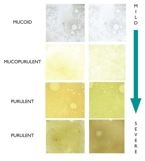 phlegm color chart color of mucus lung mucus color chart chest phlegm