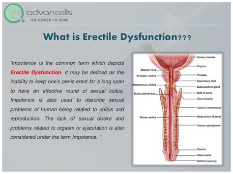Erectile Dysfunction Drugs Best, Erectile Dysfunction Drugs. The Service Master Company Canadian Bond Etf. Professional Hockey Player Salary. Gas Stations That Accept American Express. Prada Fashion Designer New Website Extensions. Best Open Source Software Best State For Llc. Audubon Country Club Naples Fl. Heating Repair Minneapolis Badge Lock And Key. What Does A Diagnostic Medical Sonographer Do