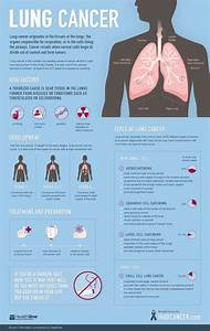 Lung Cancer  A Visual Guide