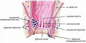 Признаки геморроя рака прямой кишки