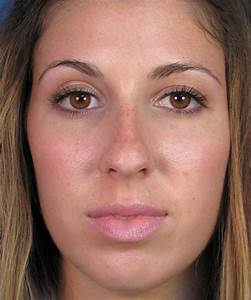 Rhinoplasty In San Diego