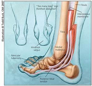 Adult Acquired Flatfoot  An Overview