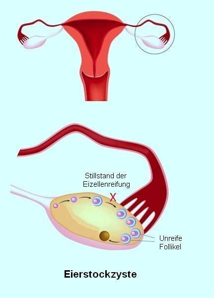 eierstockzyste schmerzen eierstockkrebs symptome operation