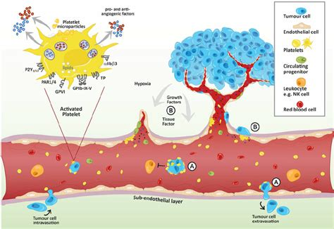 Platelet-mediated tumor metastasis and angiogenesis ...