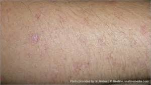 Gallery of Skin Cancer Images - American Cancer Society Skin Cancer