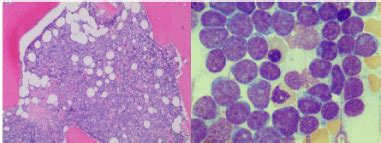 gamma delta  cell acute lymphoblastic leukemia  single