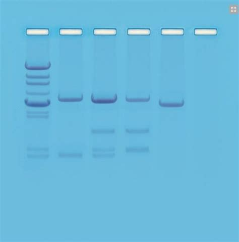 dna test di paternit 224 ml systems