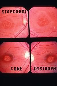 Bull's Eye Maculopathy Stargardt VS Cornea Dystrophy ...