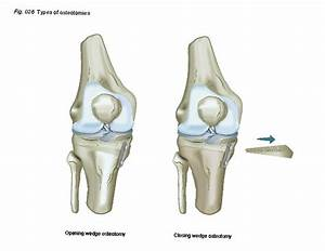 Osteotomy   Patient Education