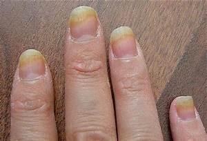 Онихомикоз грибок на ногтях ног лечение