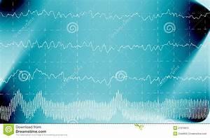 Brain Wave On Electroencephalogram Eeg Stock Illustration