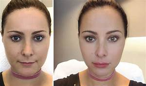 Lip Fillers in Singapore: Tried and tested! Our review of